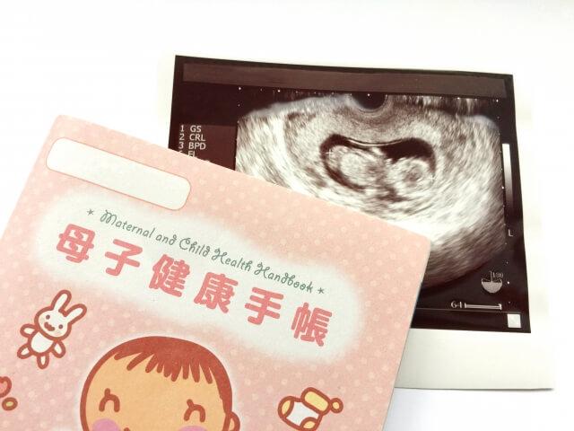 母子健康手帳とエコー写真